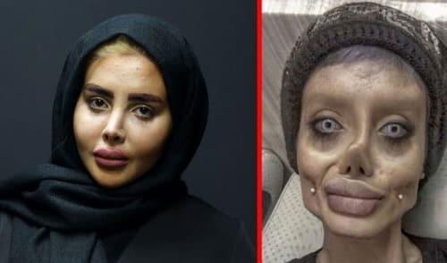 چهره سحر تبر قبل عمل به چه صورت بوده است؟